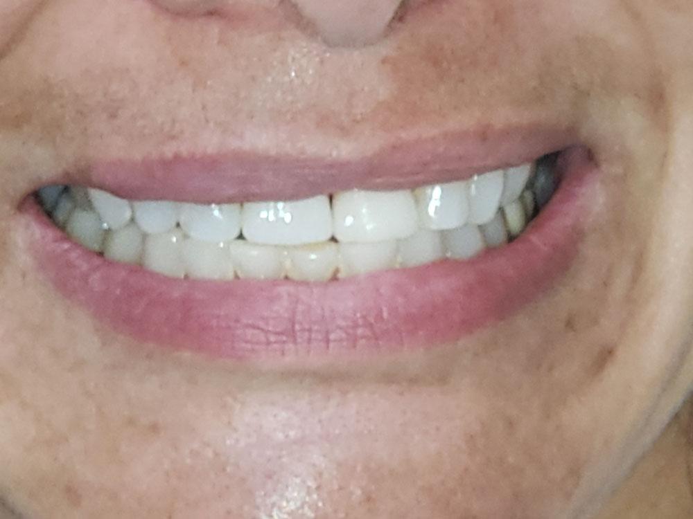 mini dental implants Rathdrum, ID